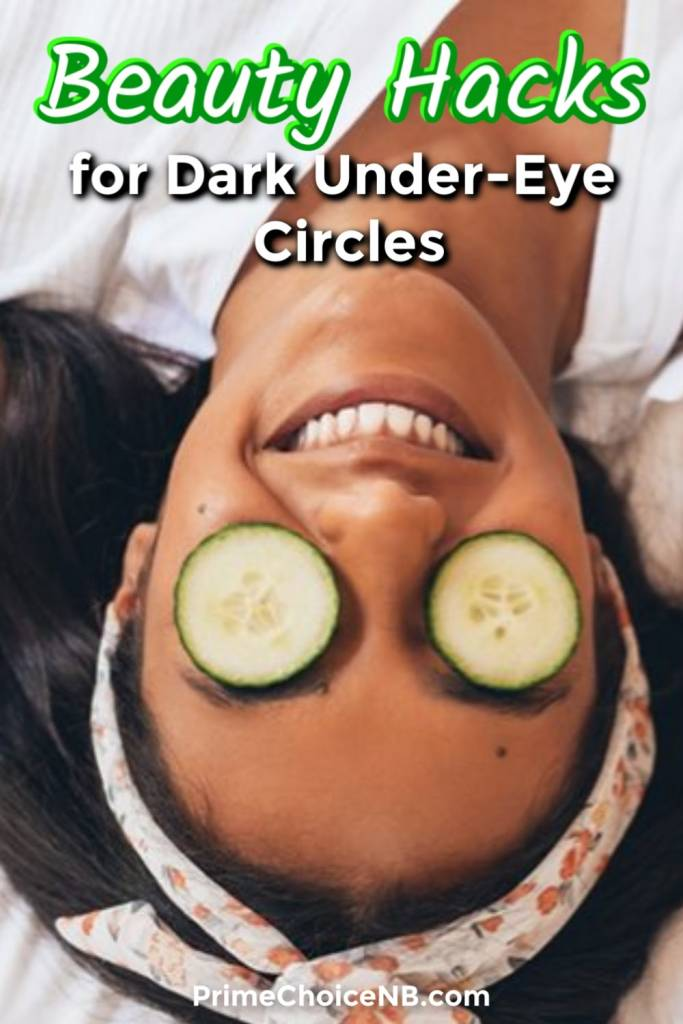 Beauty Hacks for Dark Circles Under Eyes - Prime Choice ...